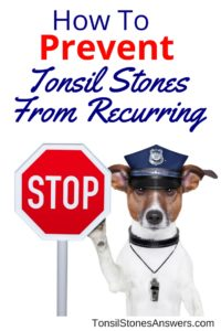 how to stop tonsil stones